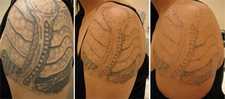 Tattoo Removal Sin On Skin Tattoo Studio